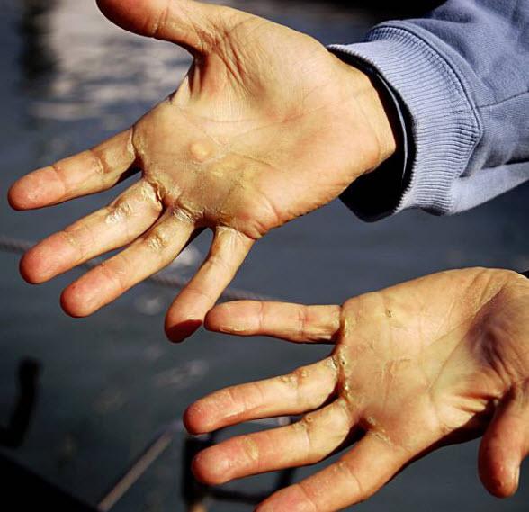 roeien-handen-eelt