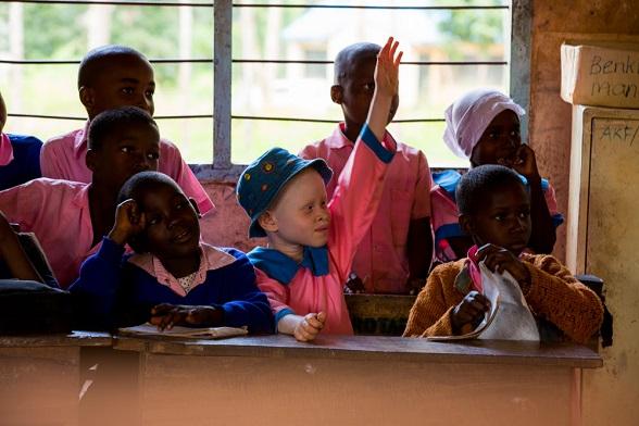 albinisme kenia